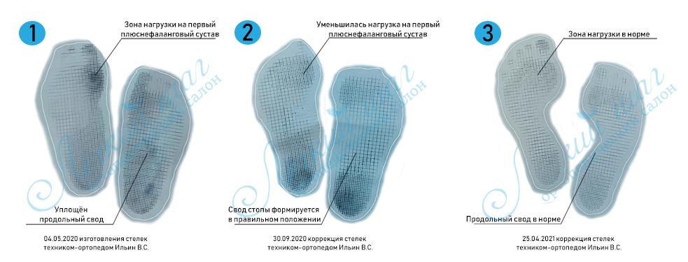 Исправление плоско-вальгусной стопы